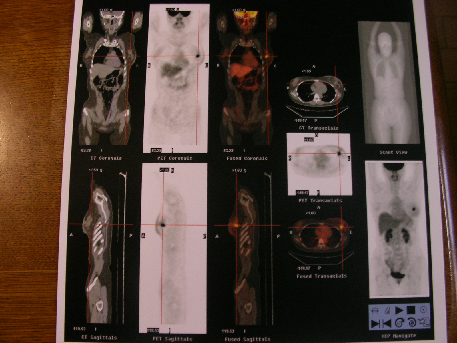 PET画像1.JPG